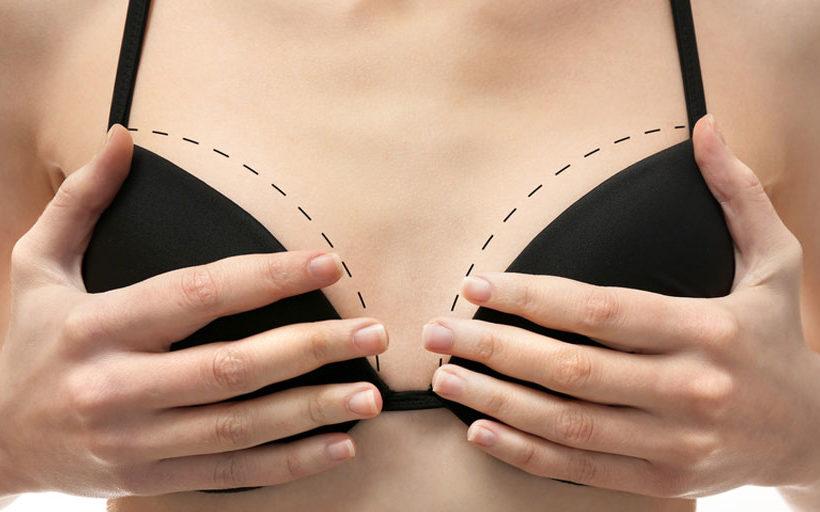 Quel implant mammaire choisir à Paris - Dr Azoulay