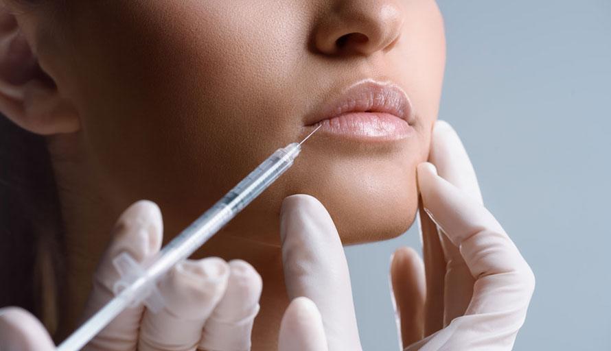 Injection d'acide hyaluronique pour les lèvres à Paris - Dr Azoulay